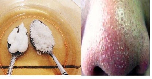 Tips Ampuh Bersihkan Komedo Dalam Sekejap Dengan Pasta Gigi dan Garam!! Begini Caranya..