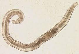 telur Enterobios vermicularis