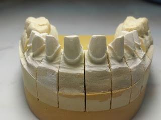 Nha khoa Quận 10 Chuyên răng sứ thẩm mỹ
