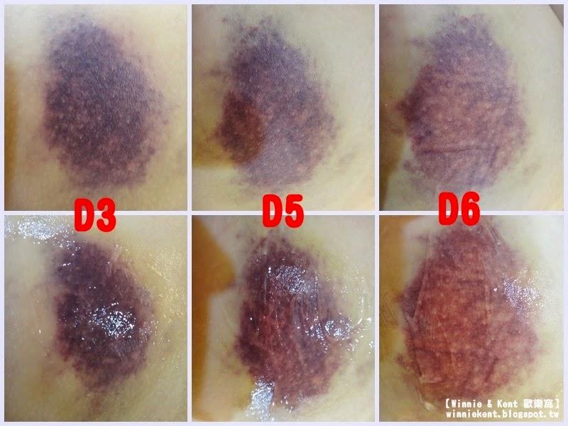 ☜ Winnie Kent ☞ 歡樂窩: 【W & K 愛漂亮】瘀青血腫最有效 - Hirudoid《喜療瘀凝膠 / 乳膏》慘痛體驗
