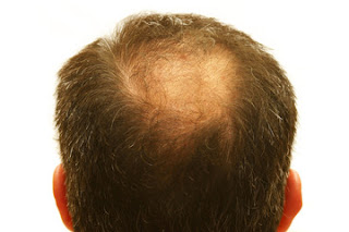 Causes-Symptoms-Types-Hair-Loss
