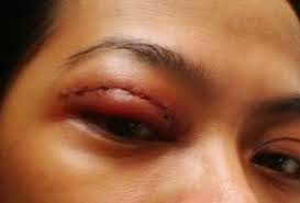 Operasi Lipatan mata