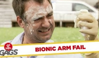 Funny Video – Prosthetic Arm Is Out Of Control PRANK!