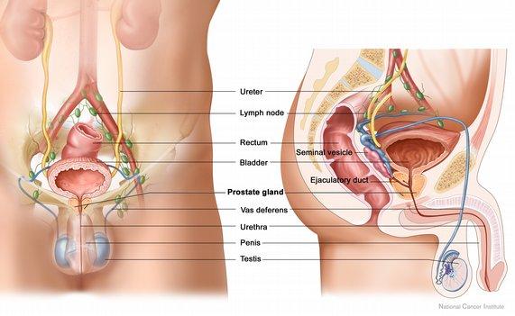 Kanker Prostat merupakan kanker pembunuh no dua setelah kanker paru paru