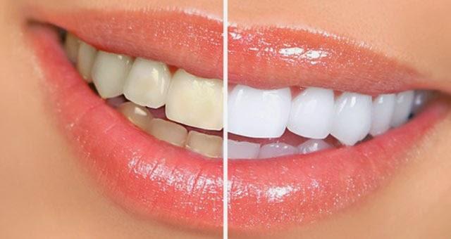 Cara Memutihkan Gigi Kuning Permanen Cara Memutihkan Gigi