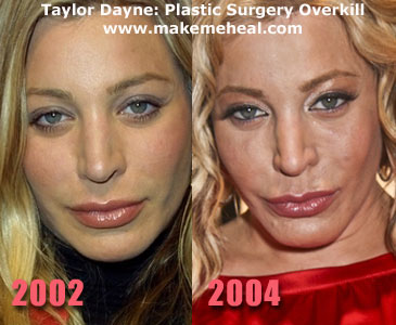 Taylor Dayne Plastic Surgery Before and After Botox Injections
