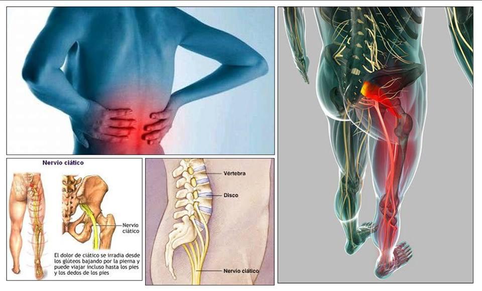 Dolor pierna ciatica sintomas