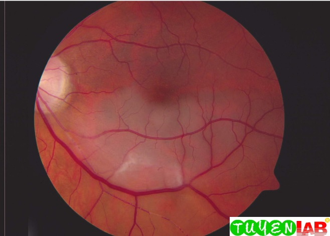Emergency Atlas Of Central Retinal Artery Occlusion Crao Free