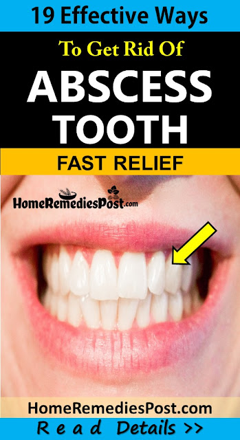 How To Get Rid Of Abscess Tooth, Home Remedies For Abscess Tooth, Abscess Tooth Treatment, Abscess Tooth Home Remedies, How To Treat Abscess Tooth, How To Cure Abscess Tooth, Abscess Tooth Remedies, Remedies For Abscess Tooth, Cure Abscess Tooth, Treatment For Abscess Tooth, Best Abscess Tooth Treatment, Abscess Tooth Relief, How To Get Relief From Abscess Tooth, Relief From Abscess Tooth, How To Get Rid Of Abscess Tooth Fast,