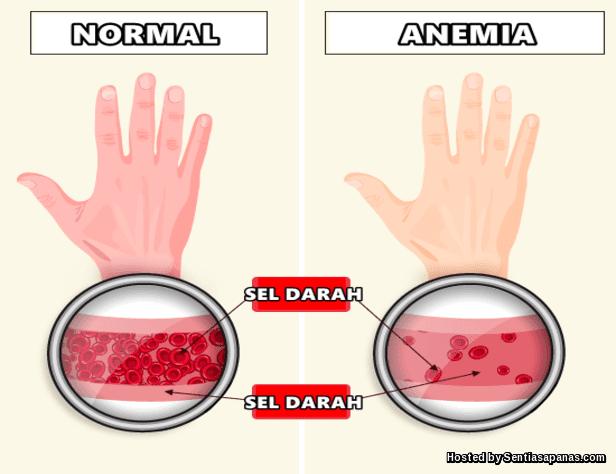 Pantangan makanan penderita penyakit anemia