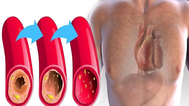 Os Melhores Alimentos Para Limpar e Prevenir Artérias Entupidas