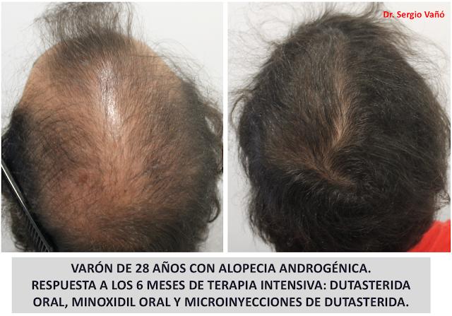 Dermatolog\u00edaMadrid: NUEVAS TERAPIAS EN ALOPECIA ANDROG\u00c9NICA