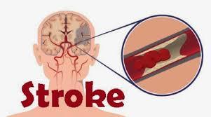 Obat tradisional penyumbatan pembuluh darah di otak