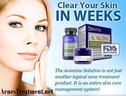 Revitol Skin Care Reviews Blog Revitol Acnezine Acne Treatment Review
