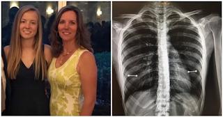 Μάνα ανακάλυψε ότι η κόρη της έχει σκουλαρίκια στις θηλές της όταν εκείνη έκανε ακτινογραφία και έχασε τη γη κάτω απ΄τα πόδια της