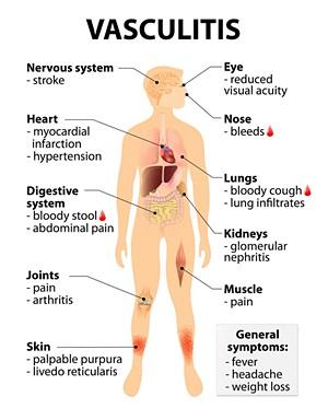Cara Menyembuhkan Vaskulitis