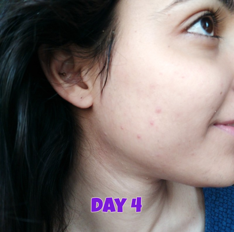 How I Got Rid Of My Pimples Completely In Just 3 Days