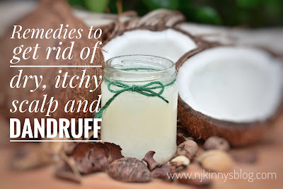 Remedies to get rid of dry, itchy scalp and dandruff- NWoBS Blog