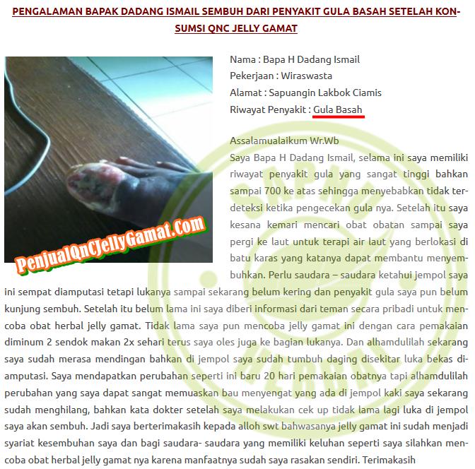 Cara Menyembuhkan Luka Borok di Kaki Secara Alami Sampai Tuntas ~ Testimoni QNC JELLY GAMAT