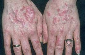 Hiv Rash Hands include oranges  nuts  uypes
