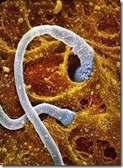 Foto Proses Sperma Berkembang Menjadi Janin, Ini Sangat Fakta