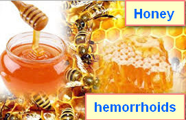 Hemorrhoids remedy natural