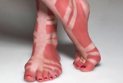 Неравномерно загоревшие ступни после носки сандалий гладиаторов