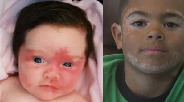 cara-menghilangkan-vitiligo-pada-anak