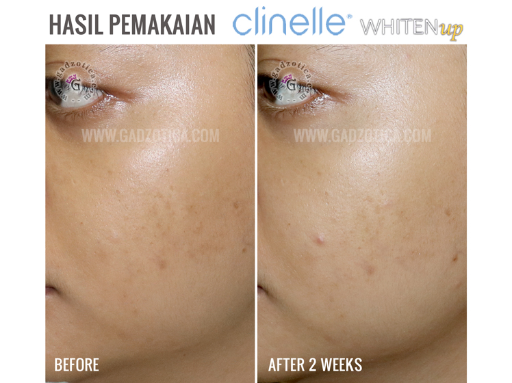 Review CLINELLE Whiten Up
