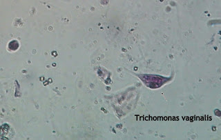 Trichomonas Vaginalis.