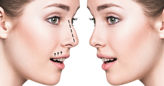How Long Does It Take to Recover From Rhinoplasty?