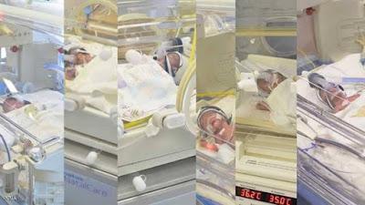 حالة عالمية نادرة .... ولادة 6 أطفال من أم واحدة ..بدون أي تدخل علاجي