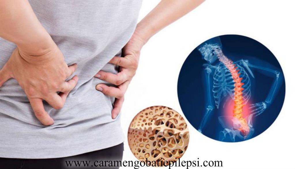 Obat Pengeroposan Tulang Lutut Tradisional
