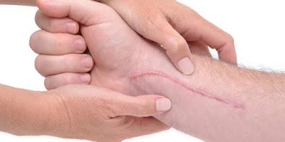 enlever cicatrice peau
