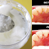 4 Easy Steps That Can Help You Whiten, Remove Tartar And Gingivitis On Your Teeth