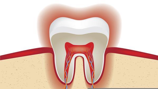 وصفات طبيعية للتخلص من وجع الأسنان