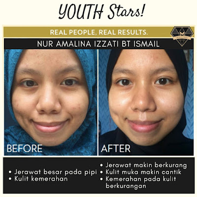 TESTIMONI YOUTH SKINCARE: PEMENANG PERTANDINGAN YOUTH STAR