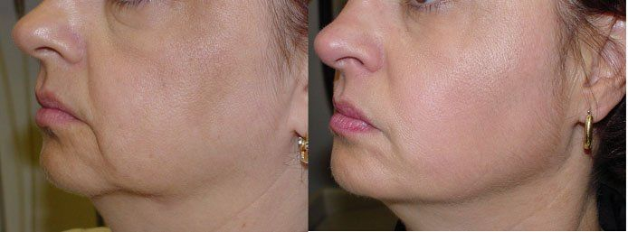 Facial Toning Workouts To Get Rid Of Nasolabial Folds And