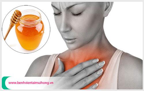 Trị viêm họng hạt bằng mật ong cực hiệu quả-https://kynangsongkhoe247.blogspot.com/