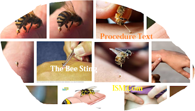 Clean your hands before taking care of the wound Teks Procedure: How to Cure a Bee sting Versi Inggris Indonesia