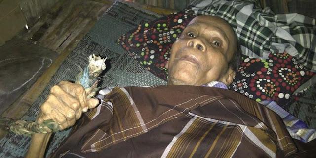Alami Kelumpuhan Selama 20 Tahun, Kakek Ini Tak Mampu Berobat Karena Himpitan Ekonomi