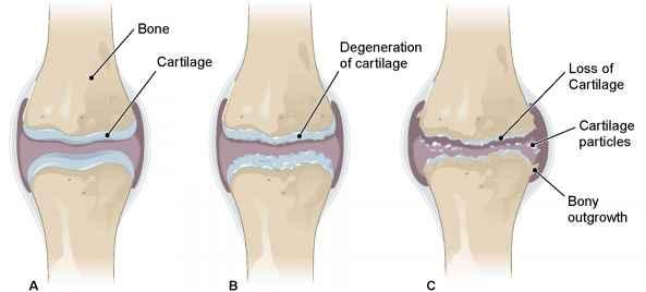 vitamin untuk sakit sendi lutut
