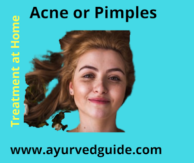 Acne or Pimples treatment at home