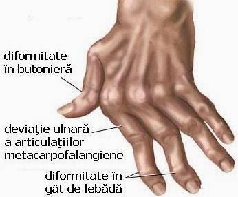 poliartrita tratament biologic dureri articulare în talpă