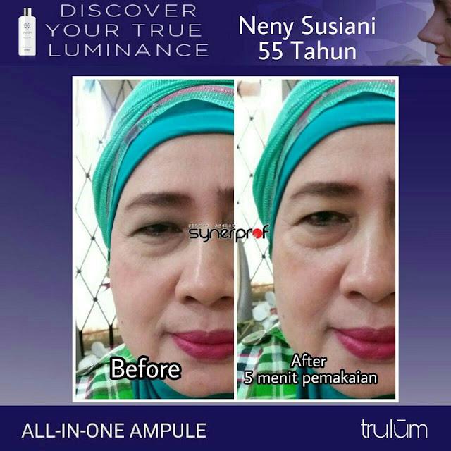 Bebas Bopeng Bekas Jerawat, Flek Hitam Tanpa Harus Laser Atau Ke Tempat Skin Care Di Pino Raya Bengkulu Selatan