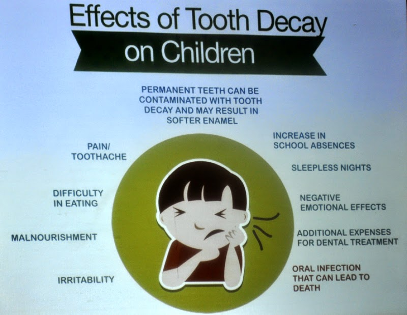 Stages Of Tooth Decay Pictures