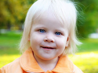 albinism human