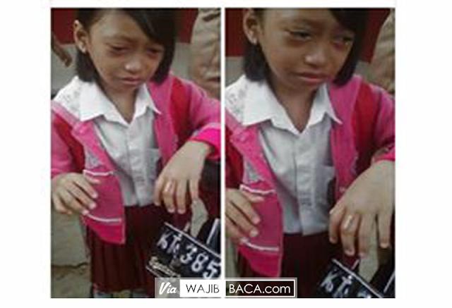 Ajeng, Siswi Kelas 3 SD ini Disiksa Ibunya. Terlihat Lebam di Mata Hingga Jarinya Bengkak di Pukul dengan Palu