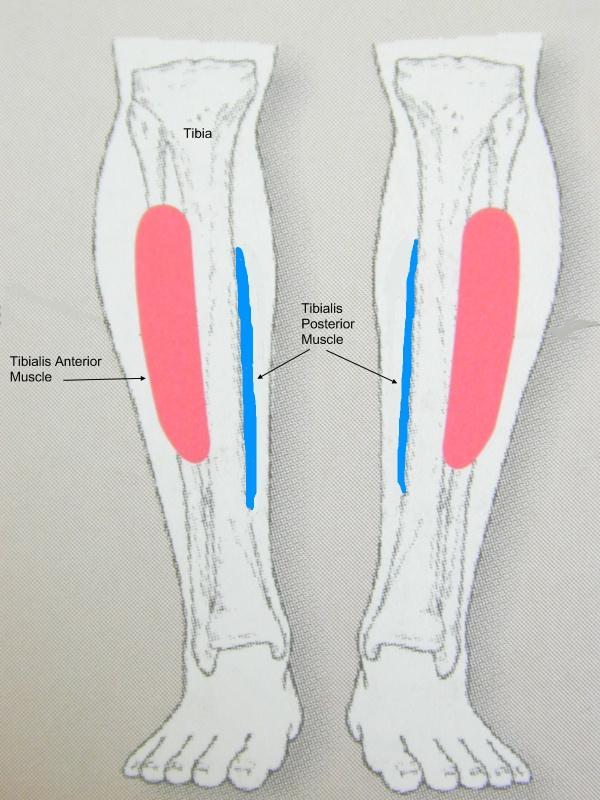 How to Get Rid of Shin Splints Fast
