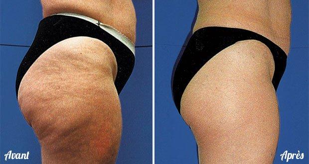Vérité Et Contre Vérité Sur La Cellulite